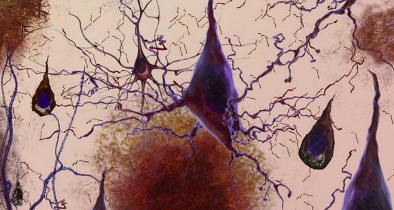 neurona_triangular