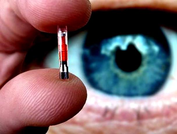 Resultado de imagen para implantacion del chip